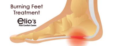 Burning Feet Treatment Niagara foot care clinic