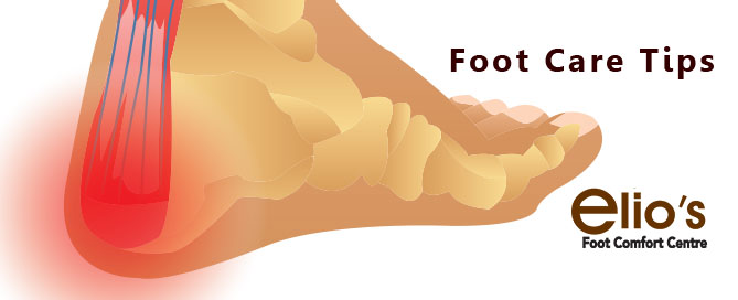 Corns Calluses Treatment | Foot Care Niagara