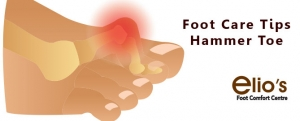 Hammer Toe Treatments