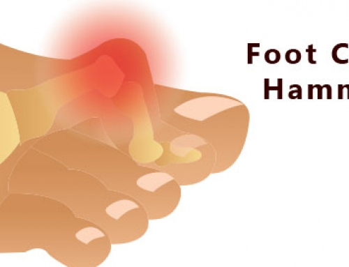 Hammer Toe Treatment | Niagara Solution