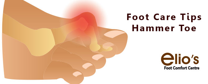 Hammer Toe Tips Elios