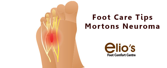 Morton's neuroma treatments | Niagara Foot Health