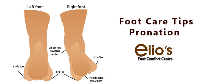 Over Pronation Treatment Elios