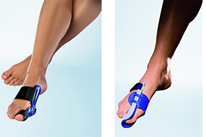 Bracing for foot, ankle,knee, lower limb and back pain at Elio's Foot Comfort Centre