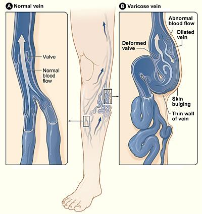 Varicose_veins-solutions-elios-foot-comfort-centre