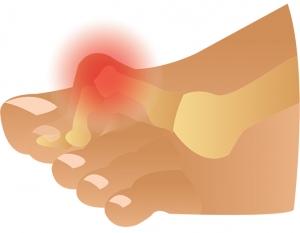 Image result for hammer toe