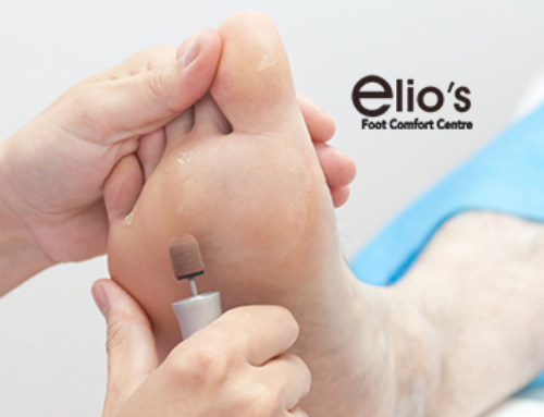 Diabetic Feet Assessment