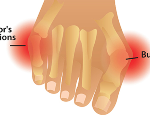 Conservative Care for Bunions