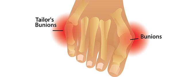 unions non invasive treatment Elios Foot Comfort